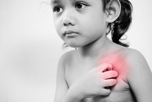 子供 蕁 麻疹 病院