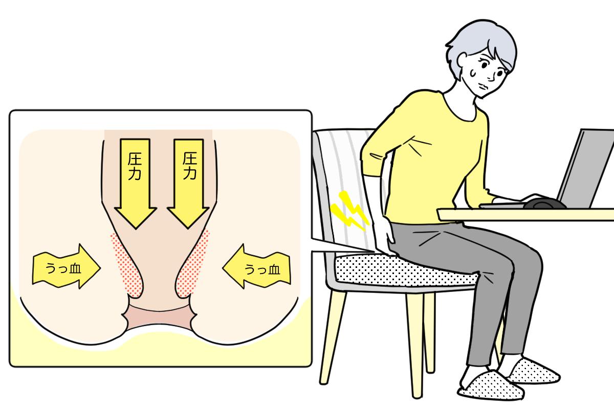 痔のイメージ図